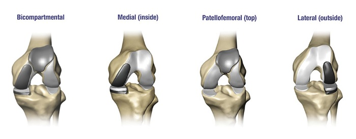 Partial Knee Replacement >> Dr Abhijit Manaswi Orthopedics Joint Replacement